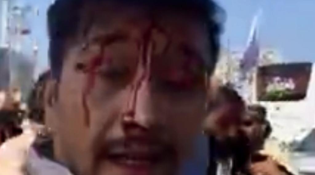 Mas eu não sou afegão!  Puro horror: o que realmente está acontecendo em Cabul.  Talibã, violência cega    Vídeo