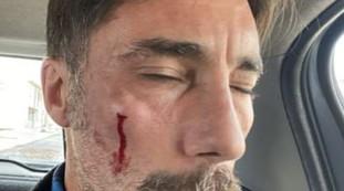 Não basta o assassinato de Vittorio Promotti, o número está piorando: quem deu entrada no hospital